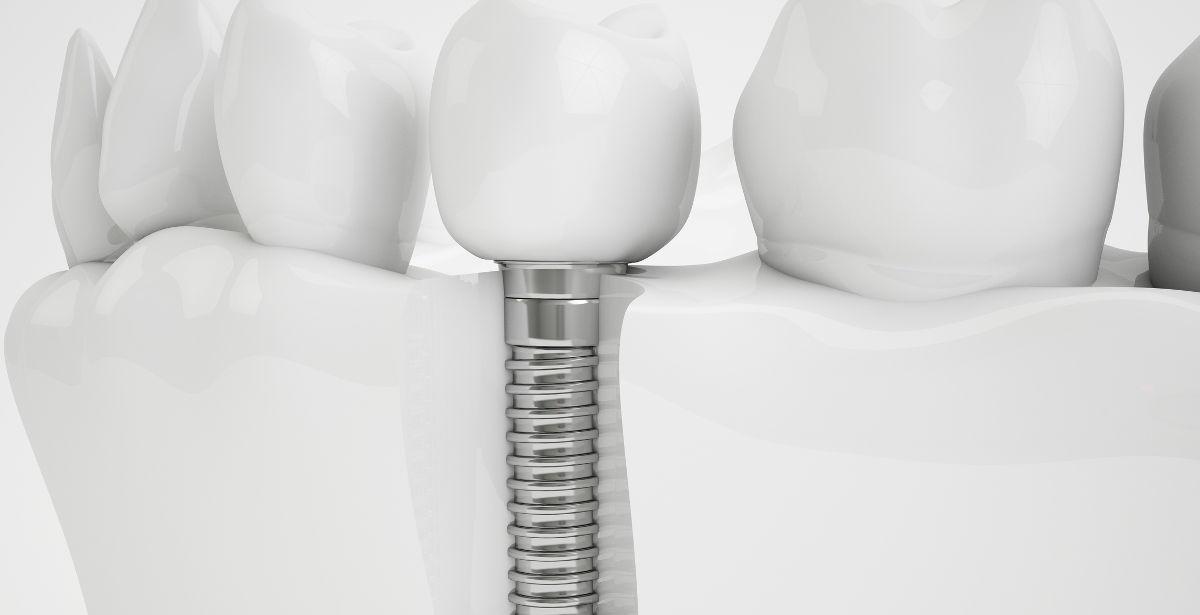Zahnimplantat